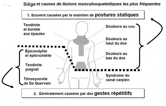 Causes lesion musculosqueletique 1