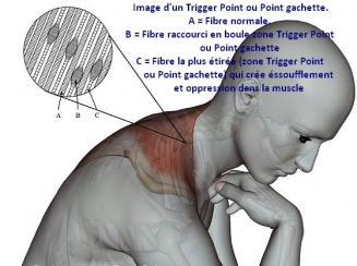 Trigger point complex